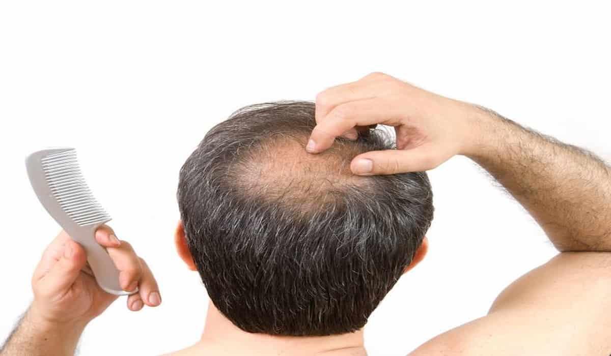 Hair Loss Corona